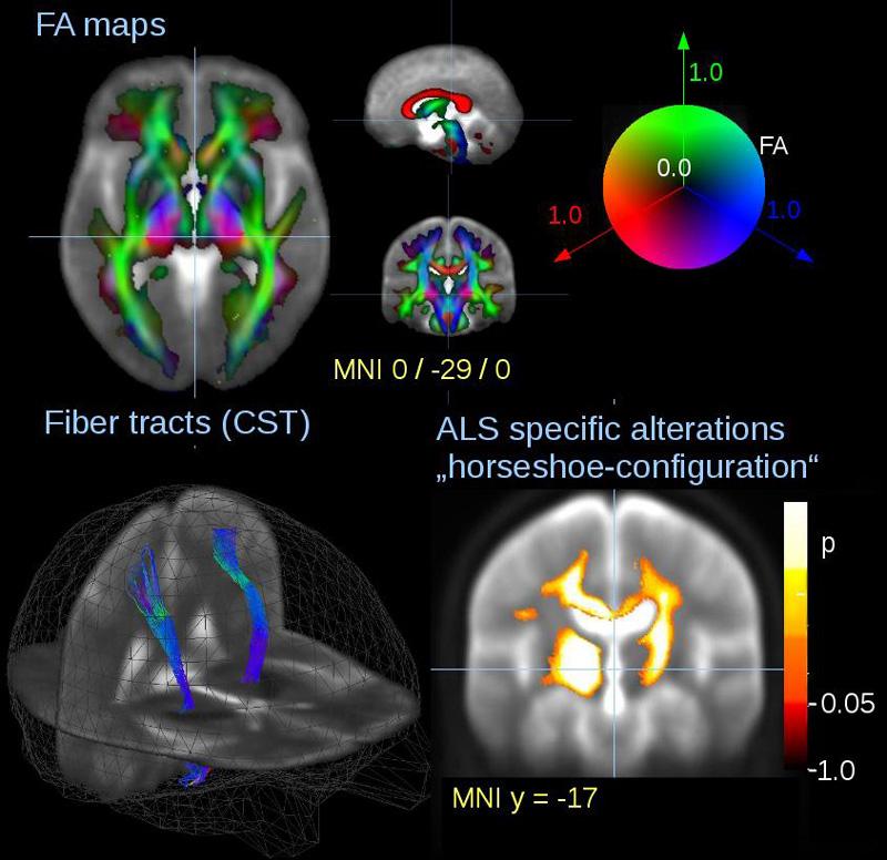 Metriken der diffusionsgewichteten MRT-Bildgebung: Fraktionale Anisotropie (FA) und Fiber Tracking. ALS-spezifische Alterationen der FA entlang des kortikospinalen Trakts.